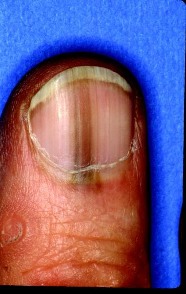 Nail Bed Melanoma Prognosis#*^